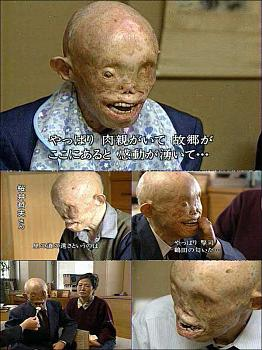 This Day In History-hiroshima-survivor-.jpg