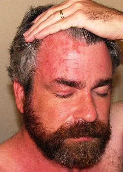 Shingles vaccine-shingles-forehead.jpg