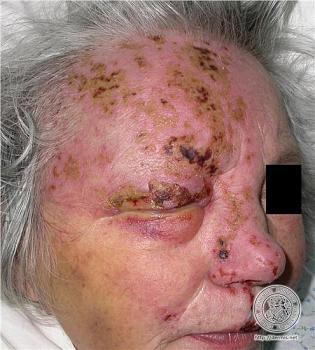 Shingles vaccine-img0034.jpg
