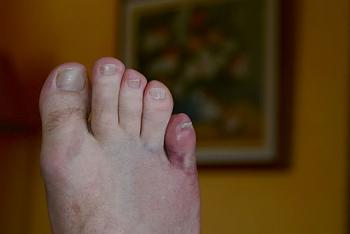 Post a Picture of Yourself-ponky-toe-hurts.jpg