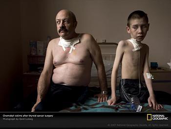 Stewardship-chernobyl-cancerous-999805-sw.jpg